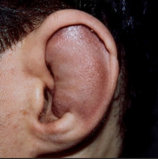 An Approach to Auricular Hematomas
