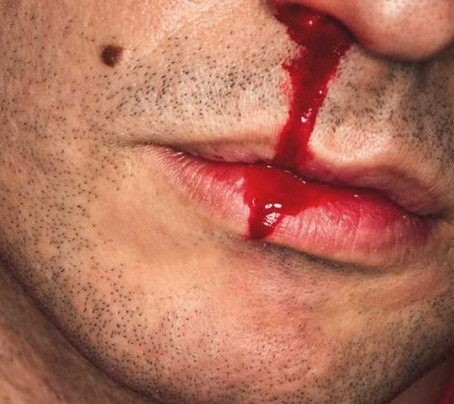 Managing Posterior Epistaxis