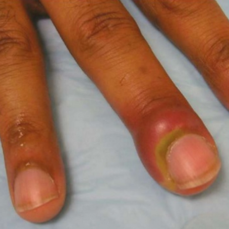 Stop Biting Your Nails: Paronychia Drainage