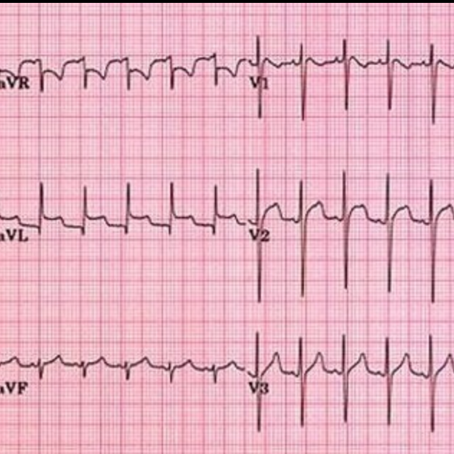 A Brief Approach to Pericarditis