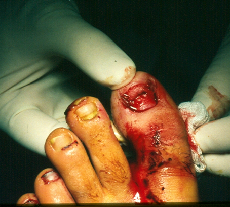 A Quick Guide to Nail Avulsion Therapy