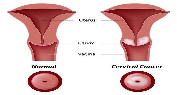 cervical cancer.jpg