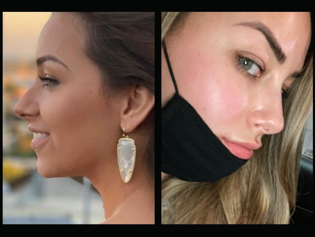 Liquid Rhinoplasty Review from Caity Secamiglio