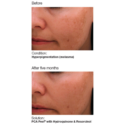 Melasma and chemical peels: a combo for flawless skin?