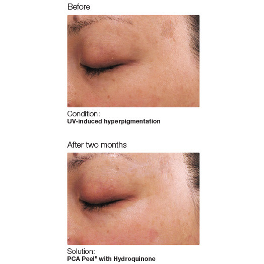 Chemical Peel Before and After pictures.....