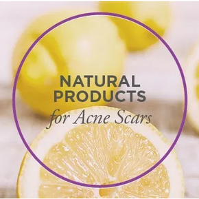 5 Fresh Products to Get Rid of Acne Scars