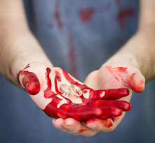 Weddingring in bloodied hand