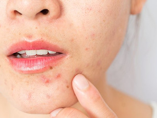 Adult Acne? Causes, Treatments & Prevention