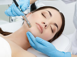 microdermabrasion diamond dermabrasion skin resurfacing ance scars pigmentation wrinkles fine lines dry skin rough dead skin cells palm beach gardens, fl 33410 renew laser and aesthetics