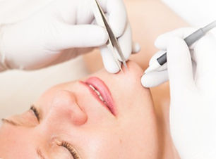 electrolysis permanent hair removal palm beach garndens, florida 33410 renew laser and aesthetics