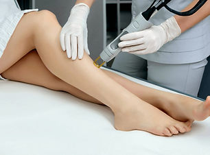 laser hair removal candela gentlelase alexandrite 755nm permanent hair reduction removal palm beach gardens, fl 33410 renew laser and aesthetics