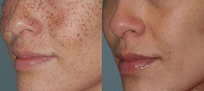 photo facial laser age spots removal.jpg