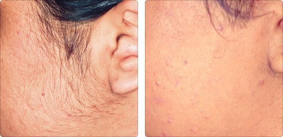 Renew Laser & Aesthetics | Laser Hair Removal - Palm Beach