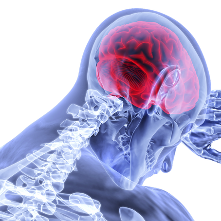 ماهي السكتة الدماغية؟