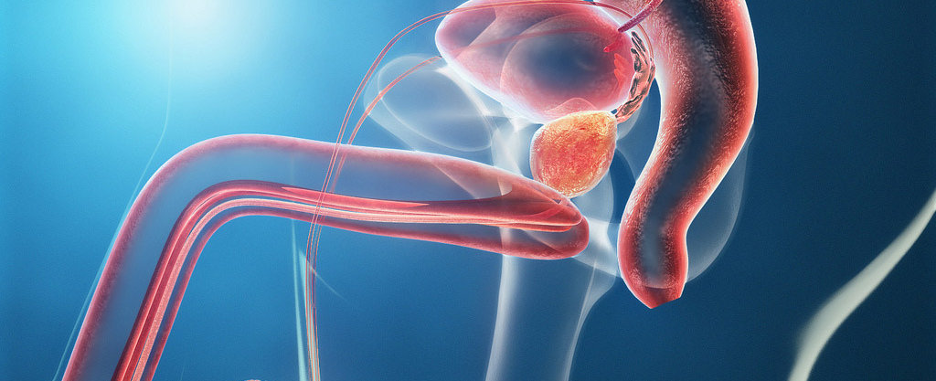 Prostate cancer symptoms and early diagnosis