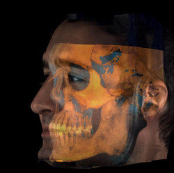 The Virtual Patient