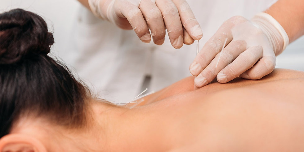example_woman_dry-needling-acupuncture-g