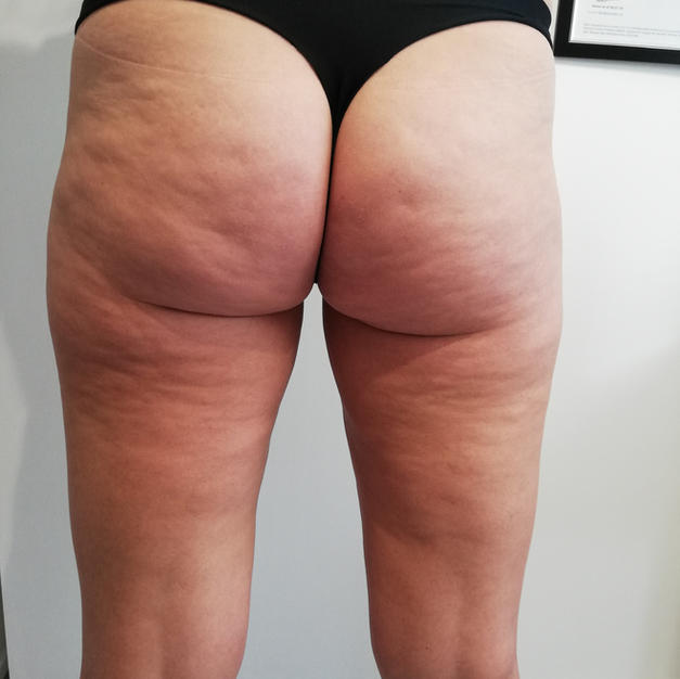 celulite reduction to buttocks and thighs