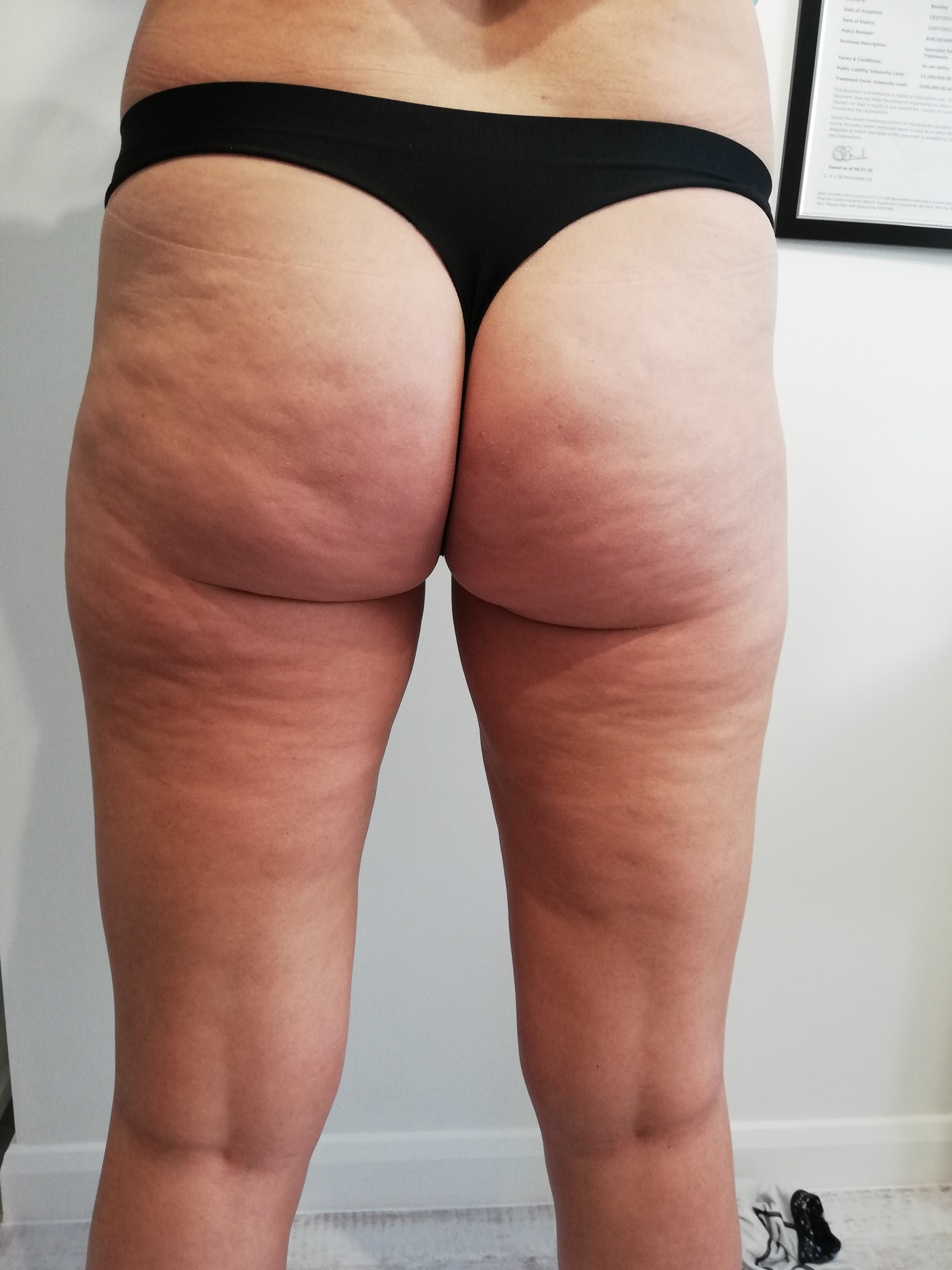 Cellulite reduction treatment plan
