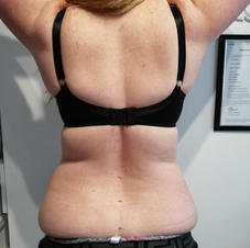 fat loss required to flanks and muffin tops