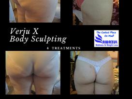 Non invasive body sculpting