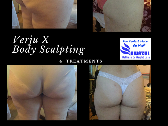 Non invasive body sculpting