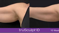 TruSculpt iD arms treatment