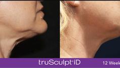 TruSculpt id neck