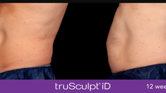 TruSculpt id bef and after