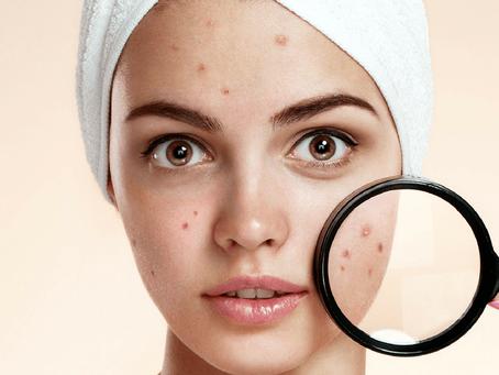 Acneea la adulți: Când este cazul să vizitezi un medic dermatolog?