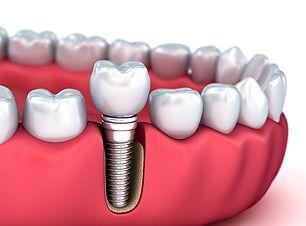 news-20180606-tooth_implant-600x400.jpg