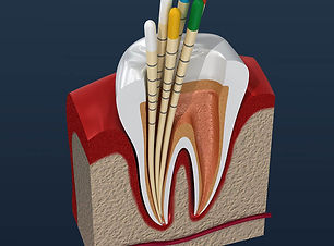root-canal-treatment-square.jpg