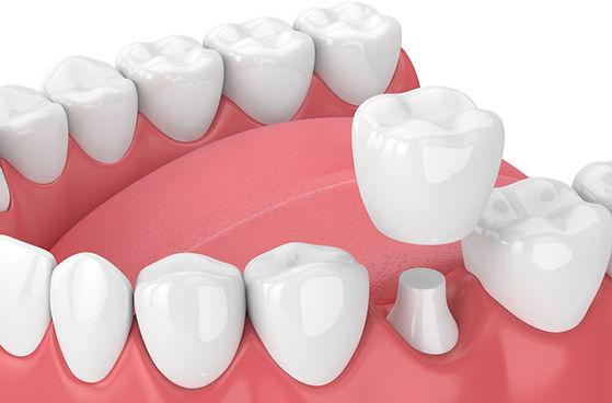 IMG-dental-crown-GettyImages-940971686.j