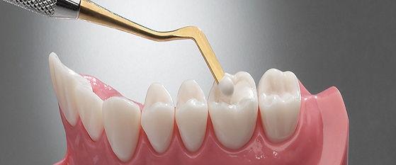 dental_fillings.jpg