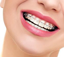 Knighton_dental_orthodontics.jpg