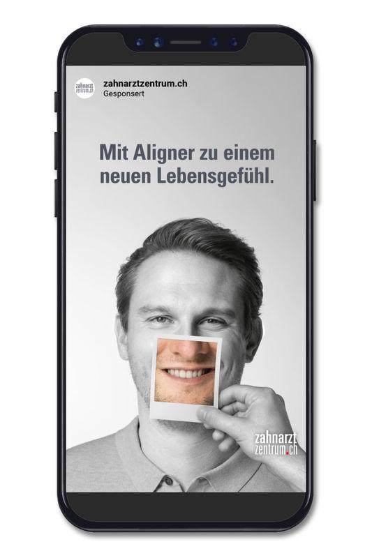 Zahnarztzentrum_Aligner_InstaStory_2.mp4