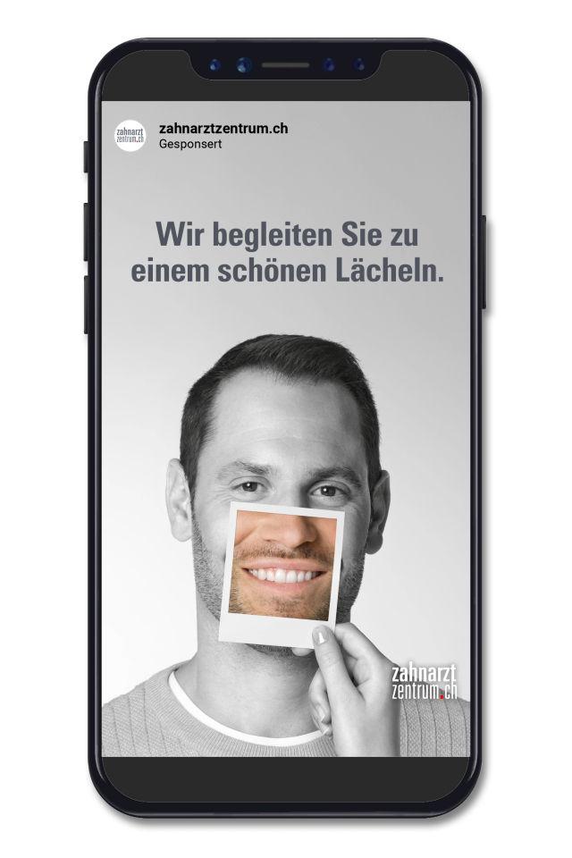 Zahnarztzentrum_Aligner_InstaStory_4.mp4