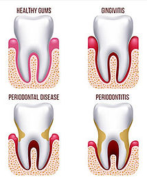 periodontal-treatments.jpg
