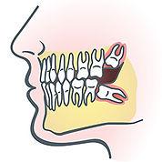 wisdom-teeth-illus.jpg