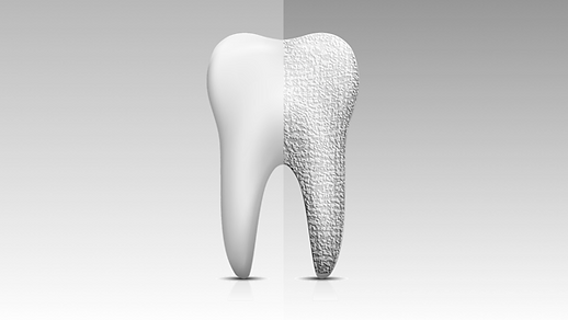 Tooth-abrasion-600x360-difference-2.png