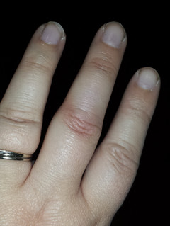Healing Hurt Relationships ~ Life Lessons From My Finger