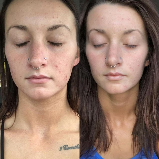 Anti-Aging Face System