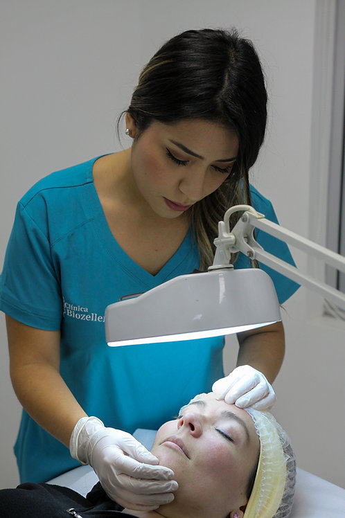 Peeling BCN