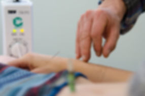 Four Corners Chinese Medicine offers Acupuncture as an effective treatment for chronic health issues and acute conditions