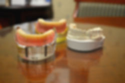 Tuttle-Crossing-Dental-Group-TeethCompar