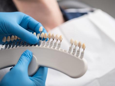 What Makes Sense, a Laminate or a Dental Crown?