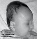 Ostéopathe bébé tête plate à Nîmes