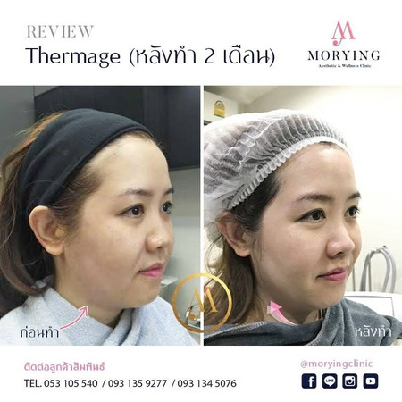 Review Thermage