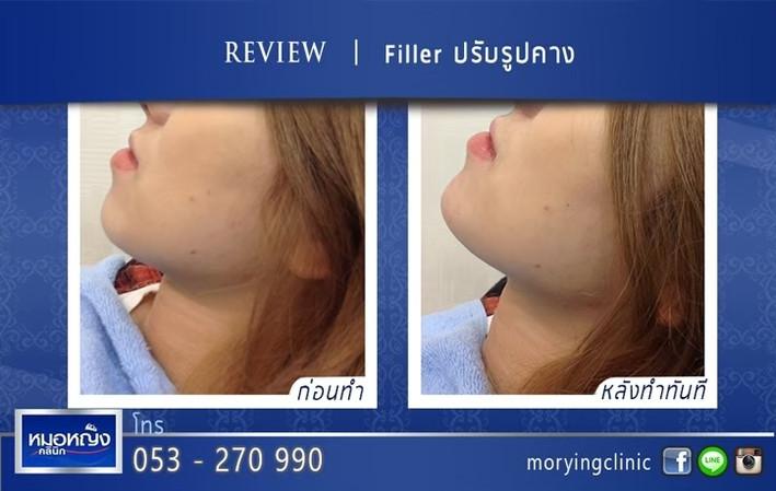 รีวิวฉีดฟิลเลอร์คาง Morying Clinic 6.jpg