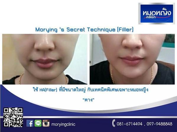 รีวิวฉีดฟิลเลอร์คาง Morying Clinic 9.jpg